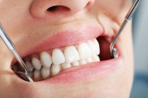 ROOT CANAL VS IMPLANT - Dental Health for Life